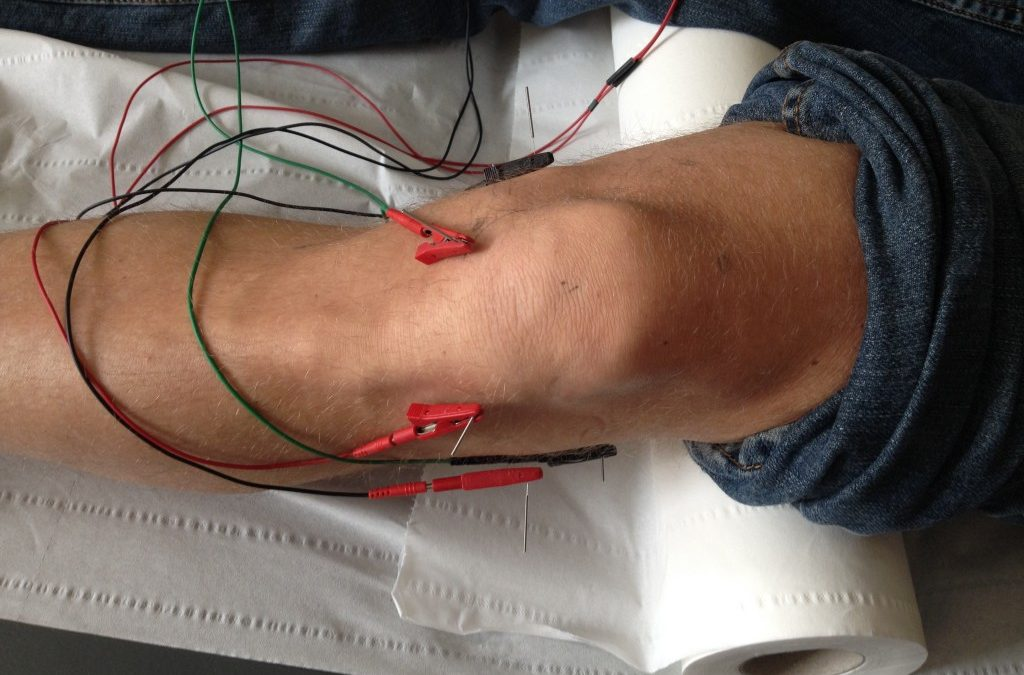 Electro- acupuncture