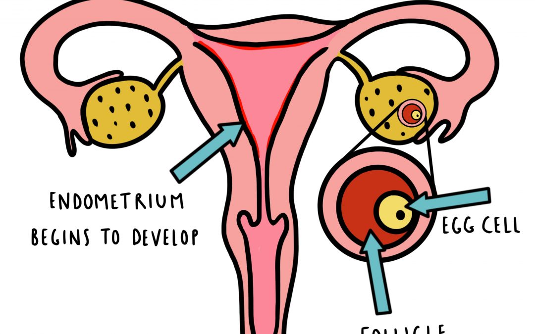 Acupuncture and Nutrition for PCOS